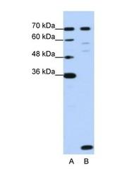 NBP1-57504 - LSM2
