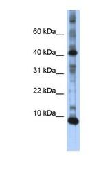 NBP1-57318 - LSM6