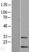 NBL1-12755 - LYNX1 Lysate