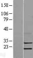 NBL1-12758 - LYPD5 Lysate