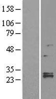 NBL1-12760 - LYPLA1 Lysate