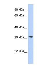NBP1-56653 - LYPLA2