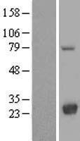NBL1-12761 - LYPLA2 Lysate