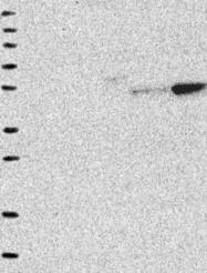 NBP1-92089 - LYPLA3
