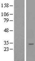 NBL1-12769 - LYSMD4 Lysate