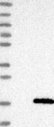NBP1-81279 - LYZL4