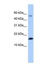 NBP1-58032 - LYZL6