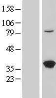 NBL1-12776 - LZTFL1 Lysate