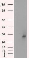 NBP1-47822 - LDHA