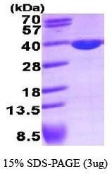 NBP1-40407 - LDHA