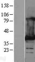 NBL1-12472 - Lactate Dehydrogenase B Lysate