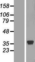 NBL1-12473 - Lactate Dehydrogenase C Lysate