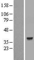 NBL1-12474 - Lactate Dehydrogenase C Lysate