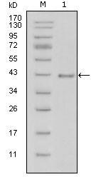 NBP1-51558 - Laminin beta-1 / LAMB1