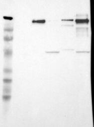 NBP1-87717 - Laminin beta-2
