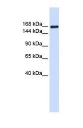 NBP1-59144 - Laminin gamma 1