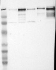NBP1-87718 - Laminin gamma 1