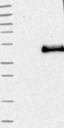 NBP1-84448 - CD207 / Langerin