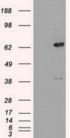 NBP1-47829 - LTA4H