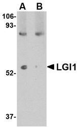 NBP1-76379 - LGI1 / EPT