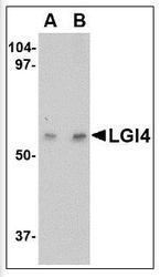 NBP1-50463 - LGI4