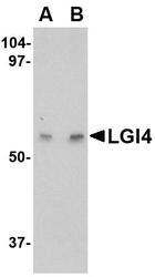 NBP1-76380 - LGI4