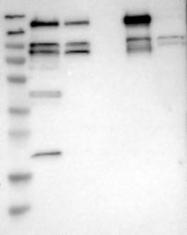 NBP1-87853 - Lipin-2