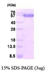NBP1-41232 - Dihydrolipoyl dehydrogenase