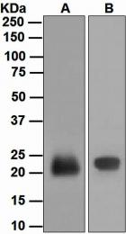 NBP1-95684 - Lipocalin-2