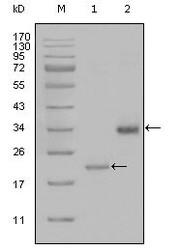 NBP1-51563 - Apolipoprotein(a) / LP(a)