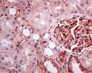 NBP1-96021 - Apolipoprotein(a) / LP(a)
