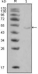 NBP1-51565 - Lipoprotein lipase