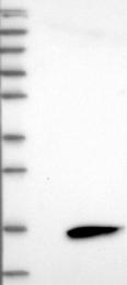 NBP1-84029 - LY6D / E48