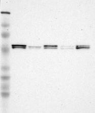 NBP1-83072 - LYN