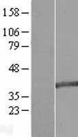 NBL1-12783 - MAB21L2 Lysate
