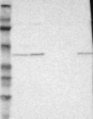 NBP1-81342 - MAFB
