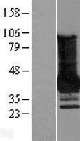 NBL1-12803 - MAGEA4 Lysate