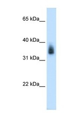 NBP1-55465 - MAGE-8