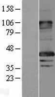 NBL1-12805 - MAGEA8 Lysate