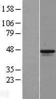 NBL1-12807 - MAGEB1 Lysate