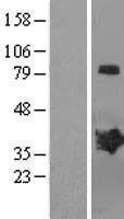 NBL1-12809 - MAGEB2 Lysate