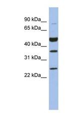 NBP1-56934 - MAGE-B3