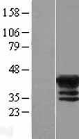 NBL1-12811 - MAGEB4 Lysate