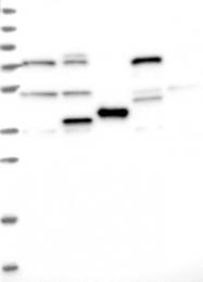 NBP1-84353 - MAGE-B6