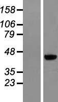 NBL1-12812 - MAGEB6 Lysate