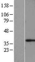 NBL1-12820 - MAGEF1 Lysate