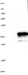NBP1-89421 - MAGE-H1