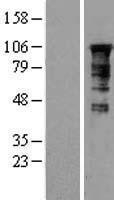 NBL1-12825 - MAGT1 Lysate