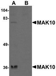 NBP1-77056 - NAA35 / MAK10