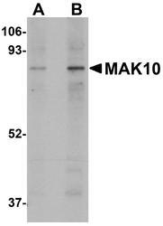 NBP1-77057 - NAA35 / MAK10